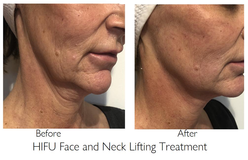 Hifu face and neck lifting