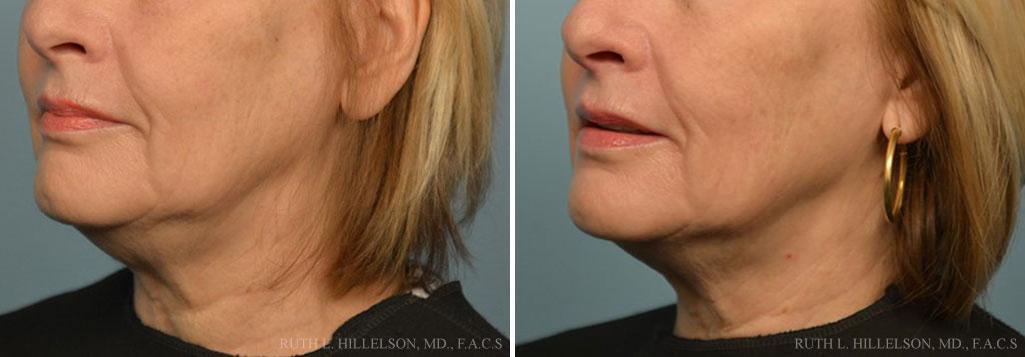 Regen Skin Firming Treatments